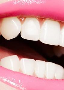 tandblekning-sjalv
